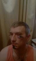 Бандитское нападение на известного общественного деятеля Одессы