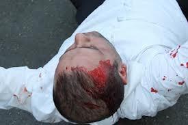 Вечером возле своего дома одесситу разбили голову