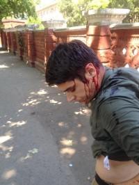 Віталій Устименко: Одного з організаторів нападу на мене випустили з СІЗО